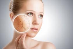 Проблема сухой кожи лица